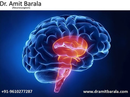 Best Neurosurgeon in Jaipur